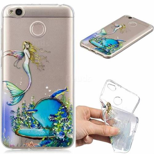 Mermaid Clear Varnish Soft Phone Back Cover for Xiaomi Redmi 4 (4X)